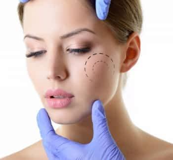 O que é Bichectomia | Grupo Lien: Clínica Odontológica Completa