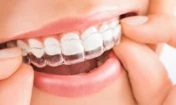 Invisalign | Grupo Lien: Clínica Odontológica Completa
