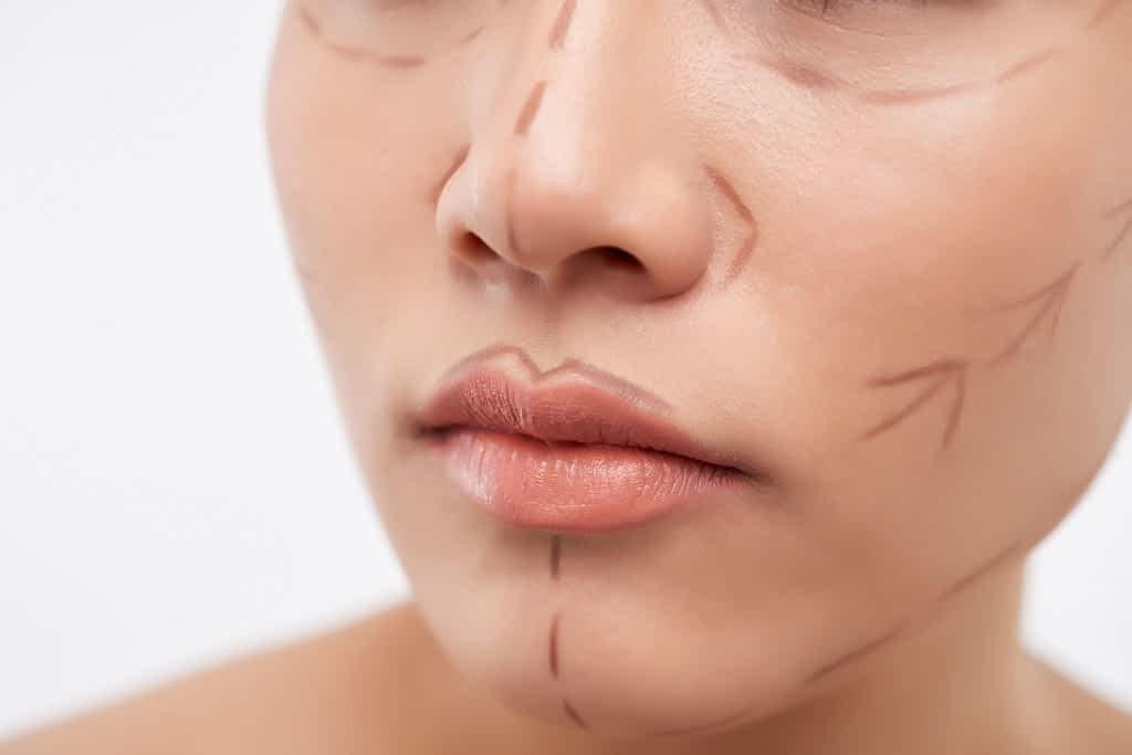 paciente mulher com linhas de marcação no rosto para procedimento de harmonização facial