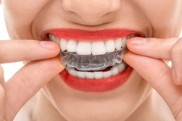 Clareamento Dentla Caseiro | Grupo Lien: Clínica Odontológica Completa