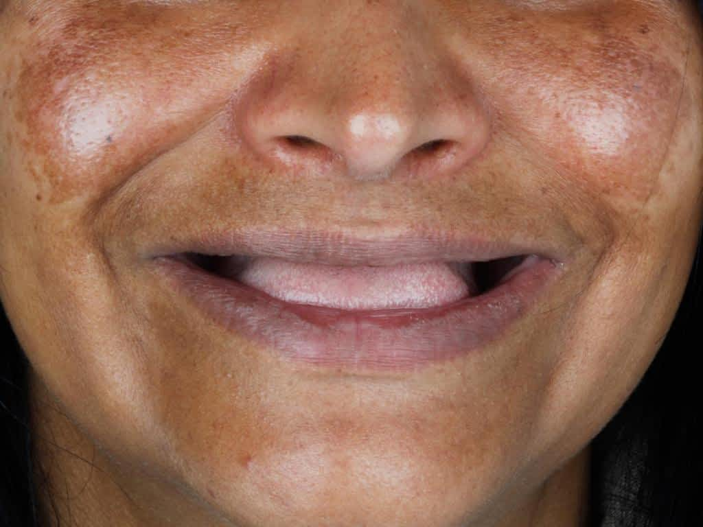 antes do implante dentário
