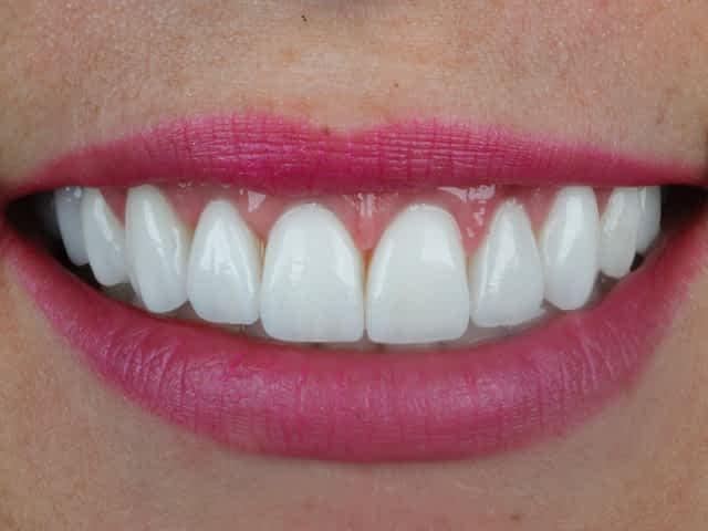 lentes de contato dental grupo Lien