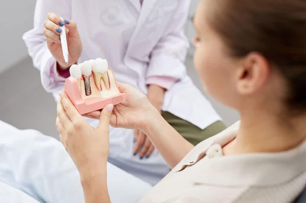 paciente conhecendo os implantes dentários do grupo lien