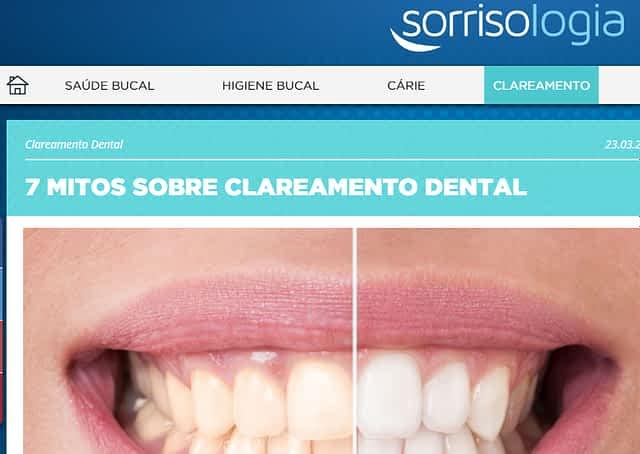Doutor Daniel Sene fala dos mitos do clareamento denta no Sorrisologia