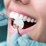 O que você precisa saber antes de colocar suas lentes de contato dental.