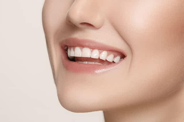 Lentes de contato dentais