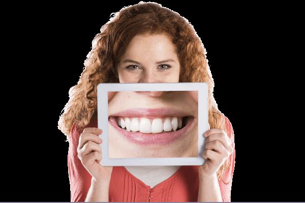 Clareamento | Grupo Lien: Clínica Odontológica Completa