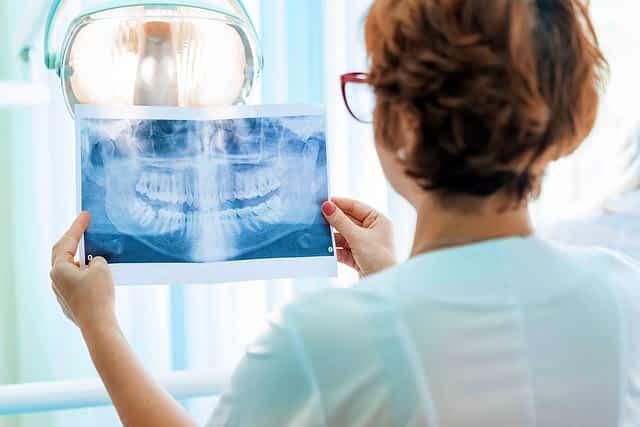 Dentista examinando um raio x para avaliar perda óssea